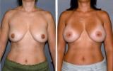 Anatomiske silikoneimplantater bagved musklen