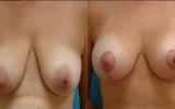 Kombineret med brysløft alt. brystreduktion
