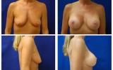 brystforstorrelse-brystloft-b-d