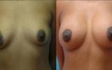 brystforstorrelse-brystloft
