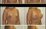 brystforstorrelse-moderat-profil