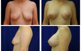 brystimplantater-brystloft-32