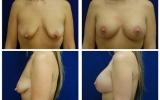brystimplantater-brystloft-33