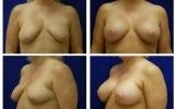 brystimplantater-brystloft-43