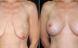 brystimplantater-brystloft