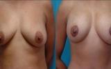 brystimplantater-brystloft2