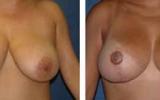 bryst-loft-5