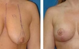 bryst-loft-7