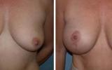 bryst-loft-9