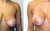 brystloft-18