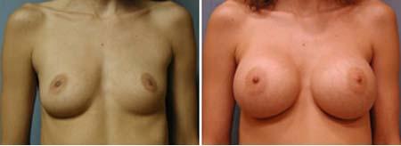før og efter billeder silikoneimplantater pornostjerne twitter