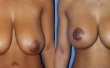 bryst-reduktion-17