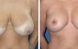 brystformindskelse-10