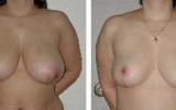 brystformindskelse-11