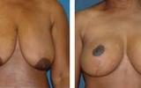 brystformindskelse-7