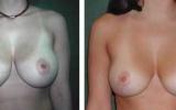 brystformindskelse-8