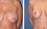 brystreduktion-1