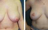 brystreduktion-3