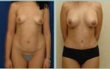 bodyjet-fedttransplantation-bryst