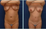 bodyjet-fedttransplantation