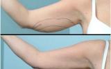 laserfedtsugning-overarmene1