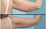 laserfedtsugning-overarmene2