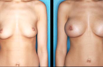 Billeder før og efter brystforstørrelse