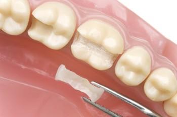 Sådan bliver behandlingen med tandfyldning udført