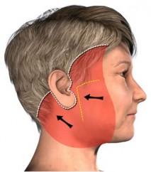 Snitplacering ved en ansigtsløftningVed en ansigtsløftning