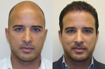Billeder før og efter hårtransplantation