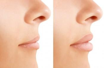 Billeder før og efter læbeforstørrelse