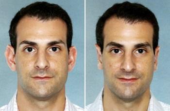 Billeder før & efter øreoperation