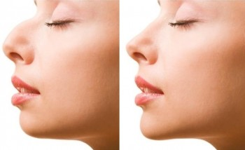 Billeder før og efter plastikkirurgi