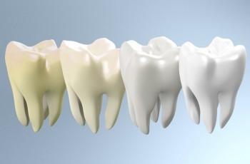 Introduktion til att blege tænder
