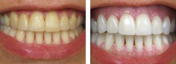 Hvilke resultater kan man forvente af at blege tænderne?