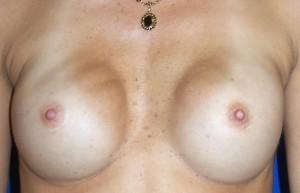 Potentielle ulemper ved noprete brystimplantater