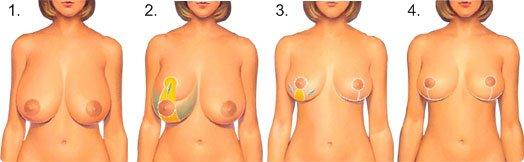 Operationsforløb ved brystreduktion