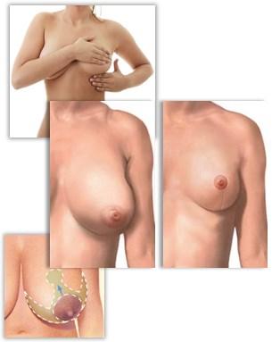 Introduktion til brystreduktion