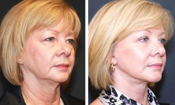 Billeder før & efter en ansigtsløftning