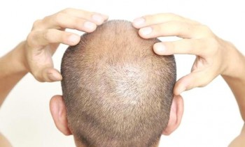 Tiden efter en hårtransplantation