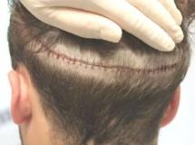 Efter hårtransplantation har patienten hundredvis af små stikhuller