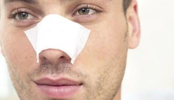 Tiden efter en næsekorrektion (næseoperation)