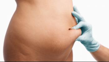 Risiko øger med mængden af fedt som fjernes