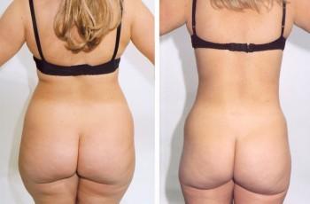 Billeder før & efter fedtsugning