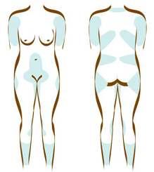 Hvilke kropsdele egner sig bedst til fedtsugningen