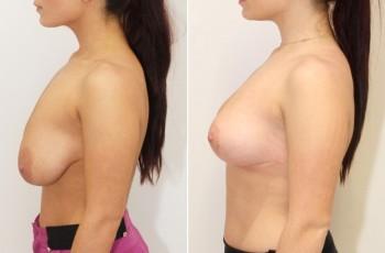 Bilder før og efter brystløft