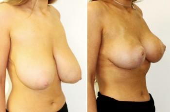 Billeder før & efter brystreduktion
