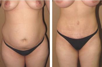Billeder før og efter maveplastik
