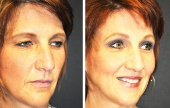 Billeder før og efter øjenlågskirurgi