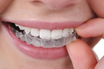 Invisalign tandbøjler